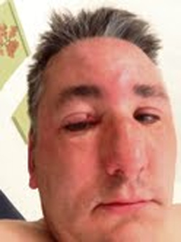 Councillor attacked as he tried to help woman